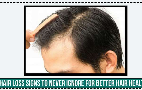Hair Loss Signs to Never Ignore for Better Hair Health