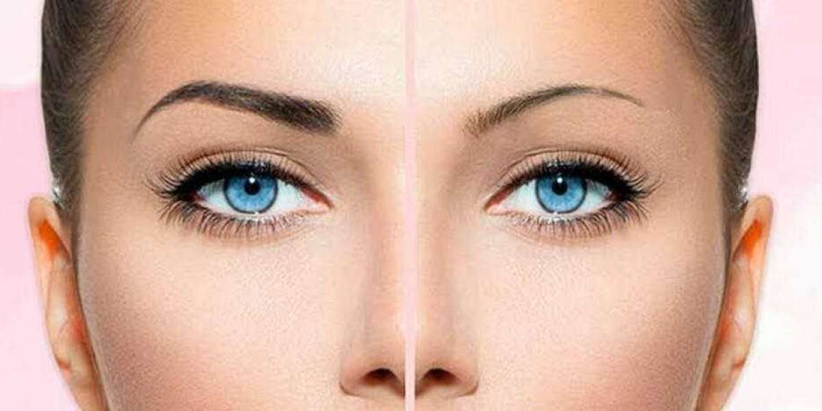 Complete Guide To Eyebrow Transplant