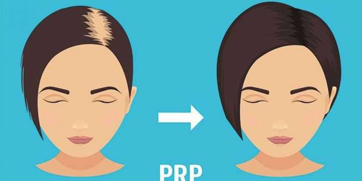 Rebuild Your Hair With PRP Hair Los Angeles
