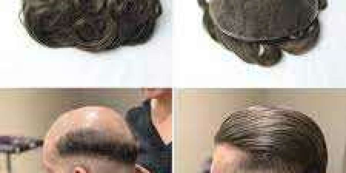good mens hair system will add some sparkle to your wig